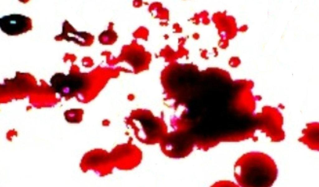 blood web op